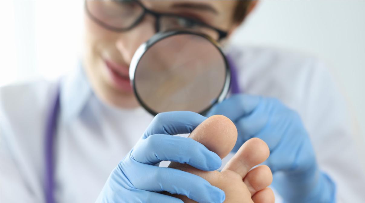 dermatoloog onderzoekt kalknagel